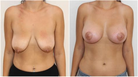 Breast reconstruction before after dr prichard jpg 800x449